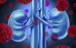 Wyniki badań przynoszą nowe informacje o strukturze genetycznej raka nerki